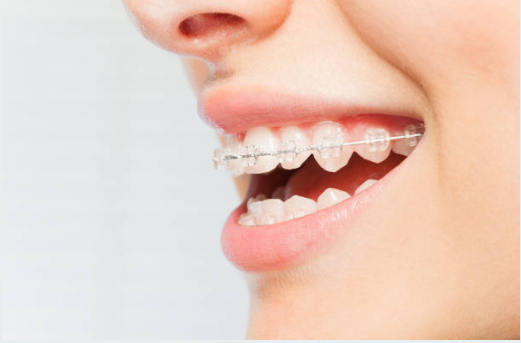 Orthodontics and braces in Elkridge, MD