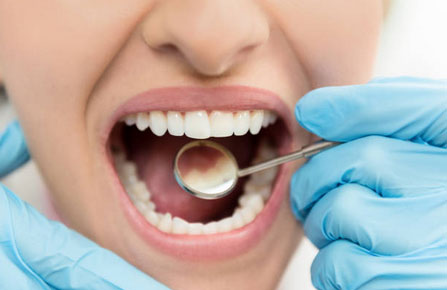 Dental Exams and Cleanings in Elkridge, MD